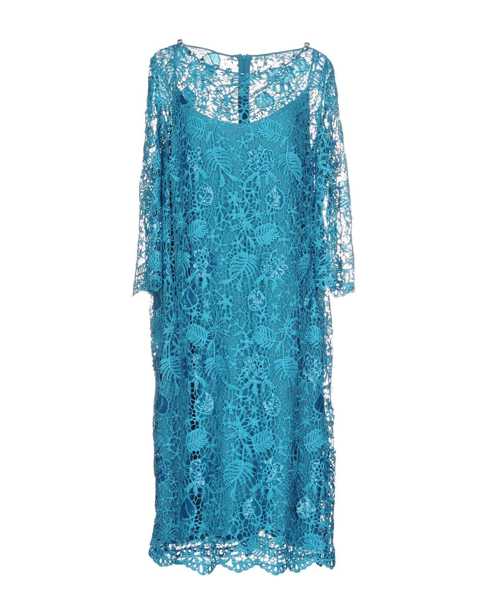 Gold KNEE-LENGTH DRESSES