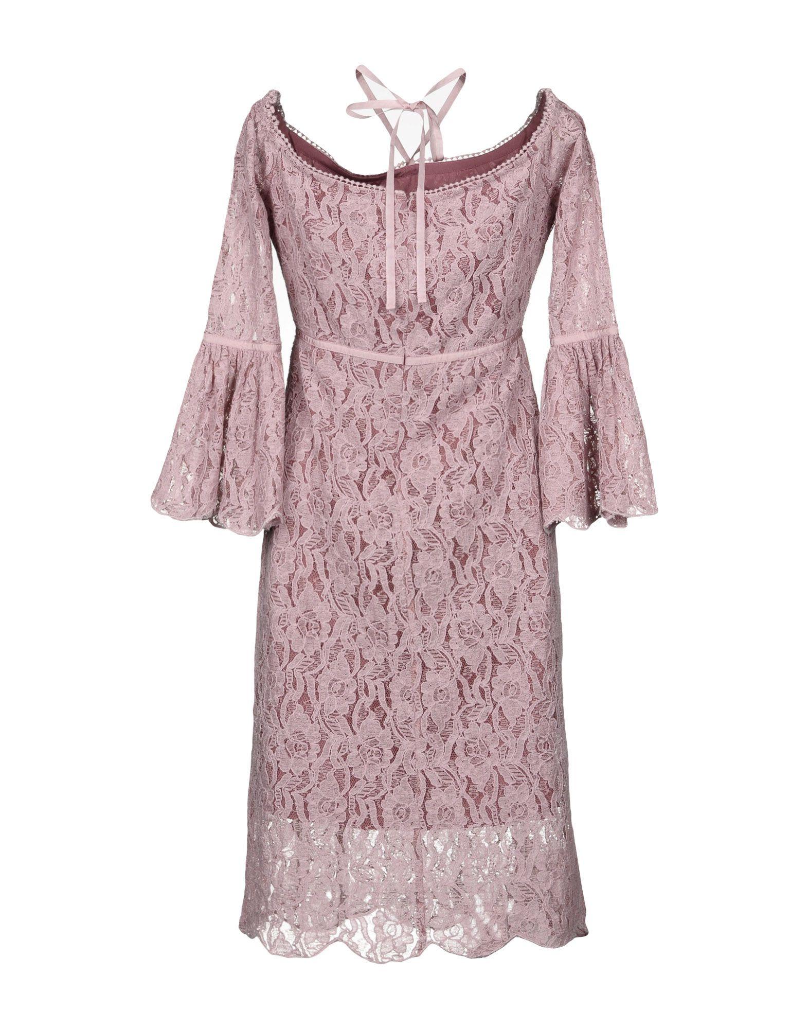 WALTER BAKER Платье до колена клип кейс gresso для nokia 3 1 прозрачный